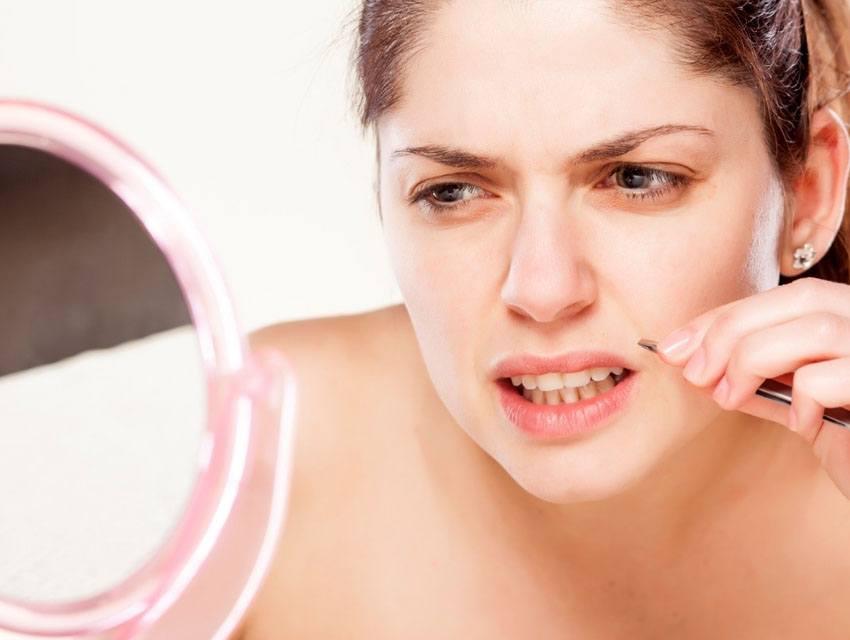 Preguntas sobre la depilación láser facial femenina