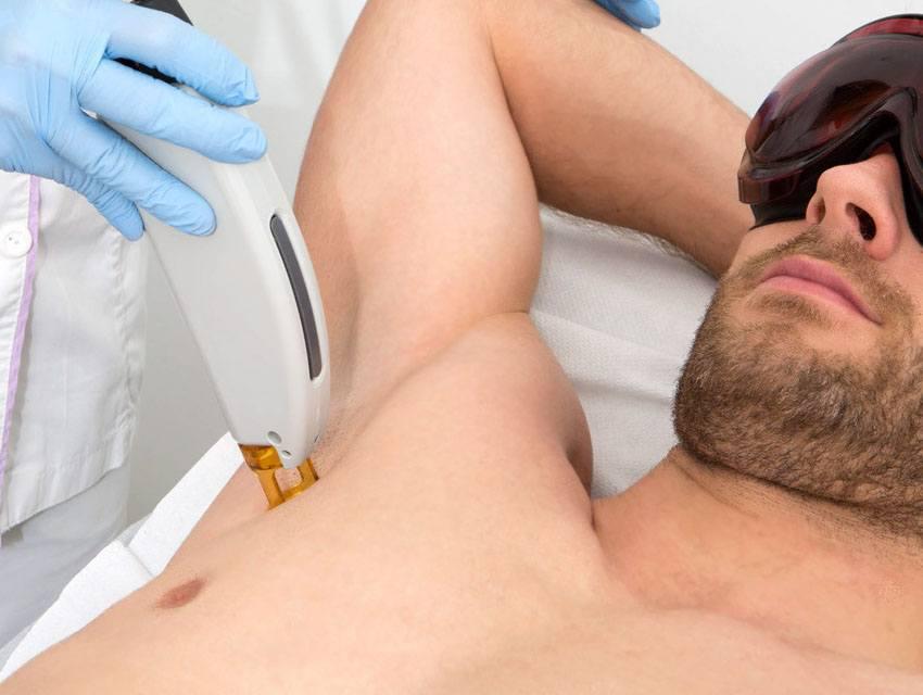 Depilación con láser médico