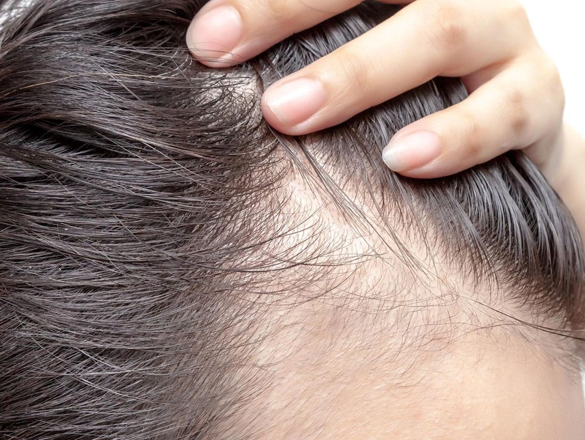 Principal causa de la alopecia
