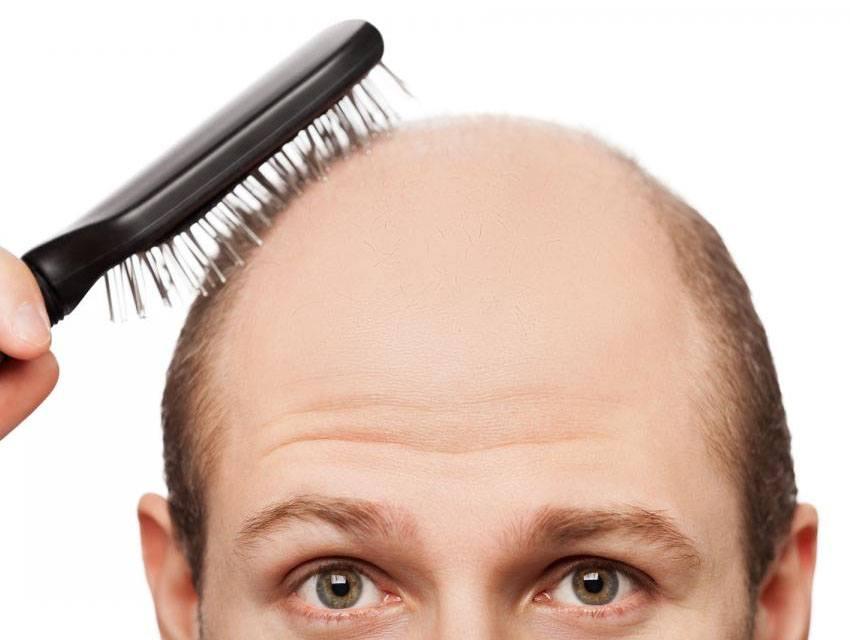Alopecia, enfermedad del Siglo XXI