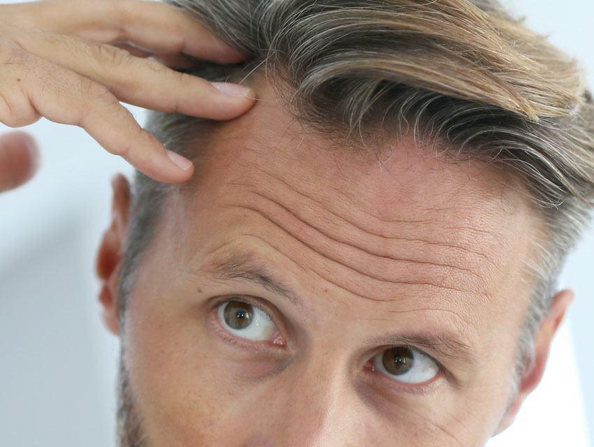 Tipos de Alopecias No Cicatriciales