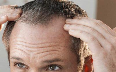 Alopecia Capilar