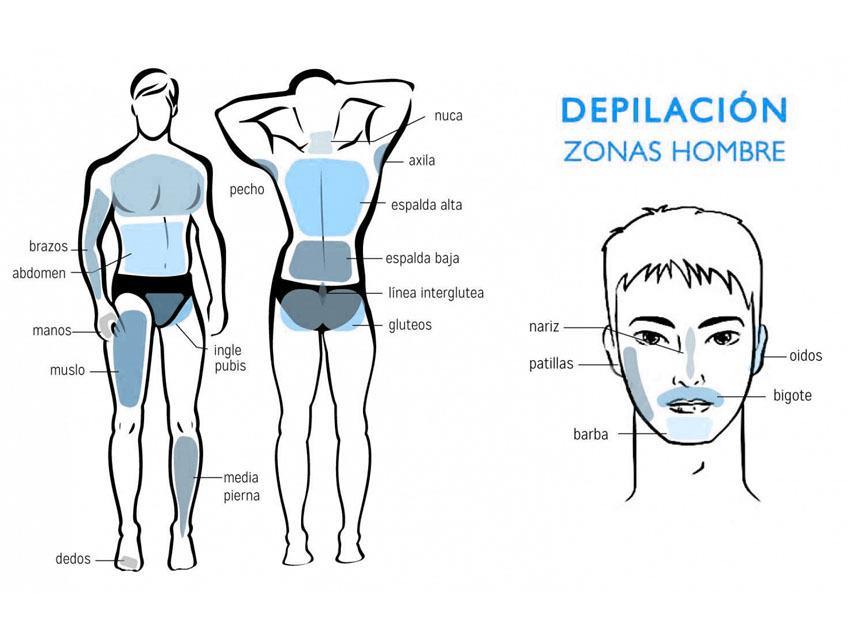 Zonas de depilación láser en hombres