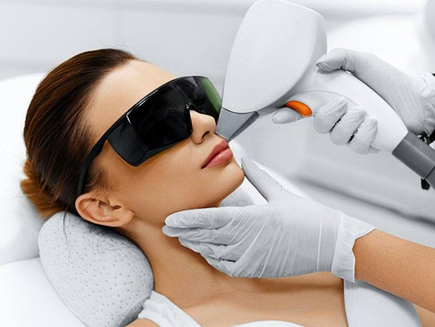 Depilación láser facial
