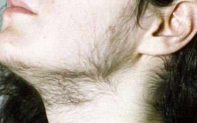 Hirsutismo e Hipertricosis