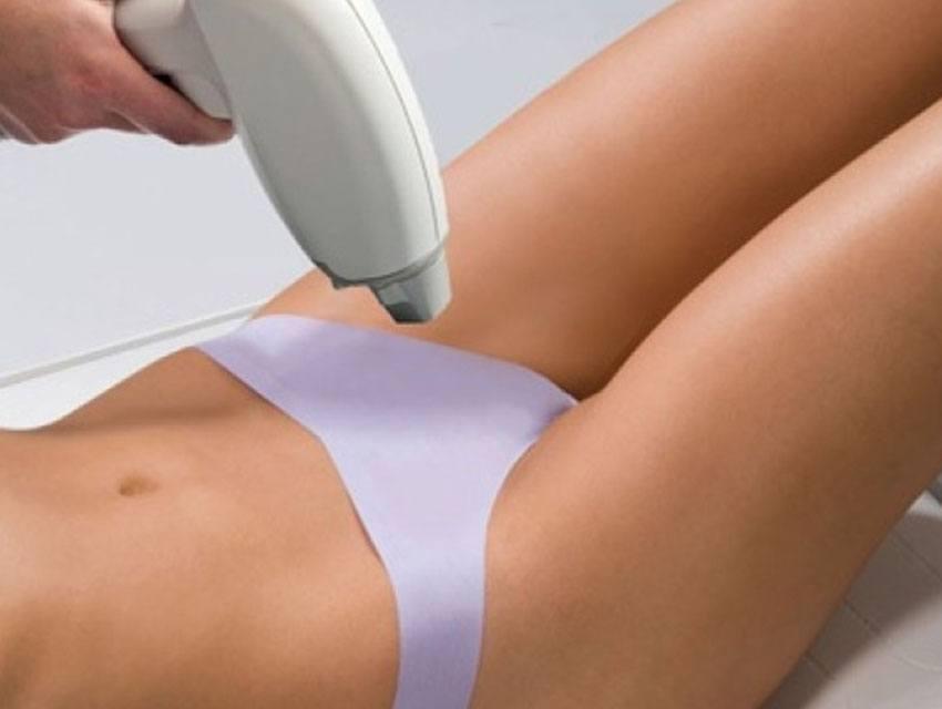 El láser y su uso en la depilación