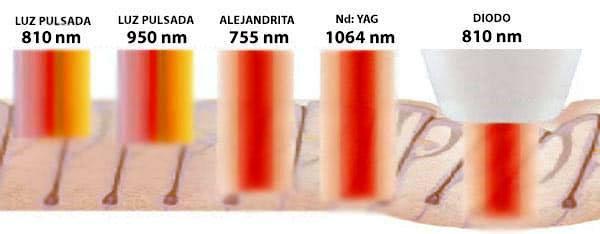 Tipos de láser para la depilación